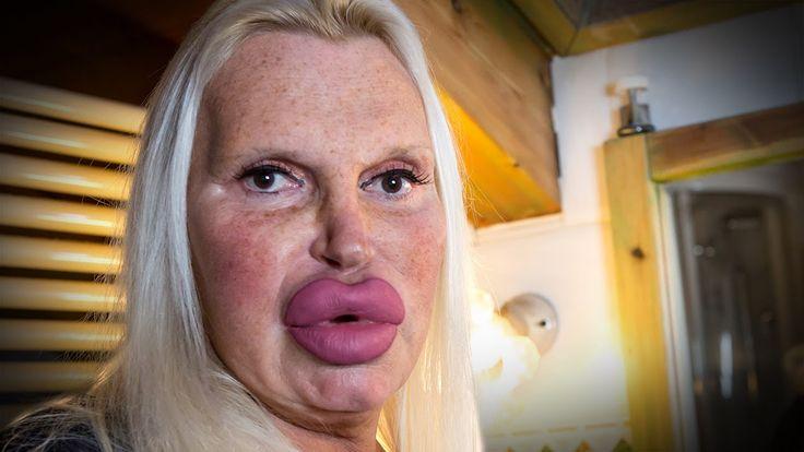 Fulvia Pellegrino è una transgender piemontese che si è sottoposta a centinaia di interventi di chirurgia plastica per somigliare a una pornostar.