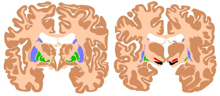 Components of the basal ganglia, shown in two cross-sections of the human brain. Blue: caudate nucleus and putamen. Green: globus pallidus. Red: subthalamic nucleus. Black: substantia nigra.