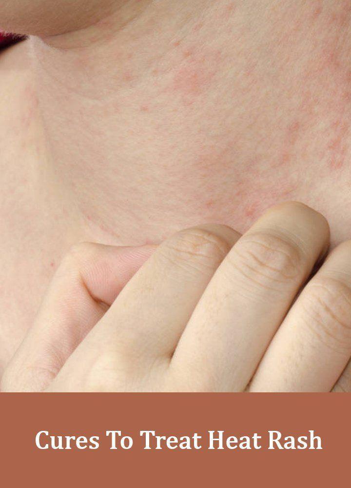 How to treat severe heat rash