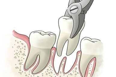 A dental extraction is the process of removing teeth from their socket in the alveolar bone. It may be done to remove decayed teeth, wisdom teeth responsible for gum infections or even to create space so that the rest of the teeth can be aligned well. The procedure costs around USD 900 in India and about USD 200 in UAE. To get a free quote for an affordable treatment, visit: http://www.medhalt.com/cheap-tooth-extraction-overseas/