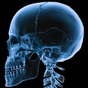rentgen hlavy