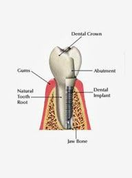 Now a day, there are so many clinics of dentists in Melbourne and they offer various services as per patients' circumstances and as per age group.