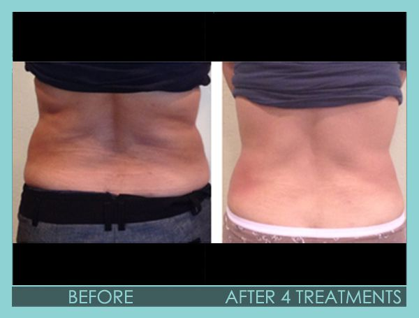 Before and After 4 treatments; Ultrasonic Cavitation, Fat removal, Skin Tightening