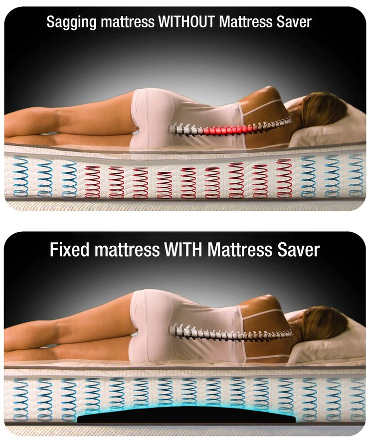 Mattress Saver quickly fixes mattress sags.