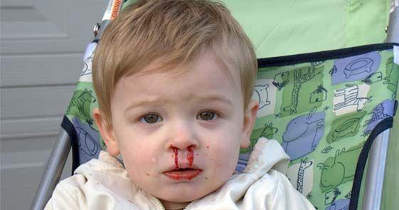 Beberapa penyakit darah dan cara pengobatannya sebagai berikut : Kurang darah pada anak-anak, Kurang darah pada wanita dan anak-anak...