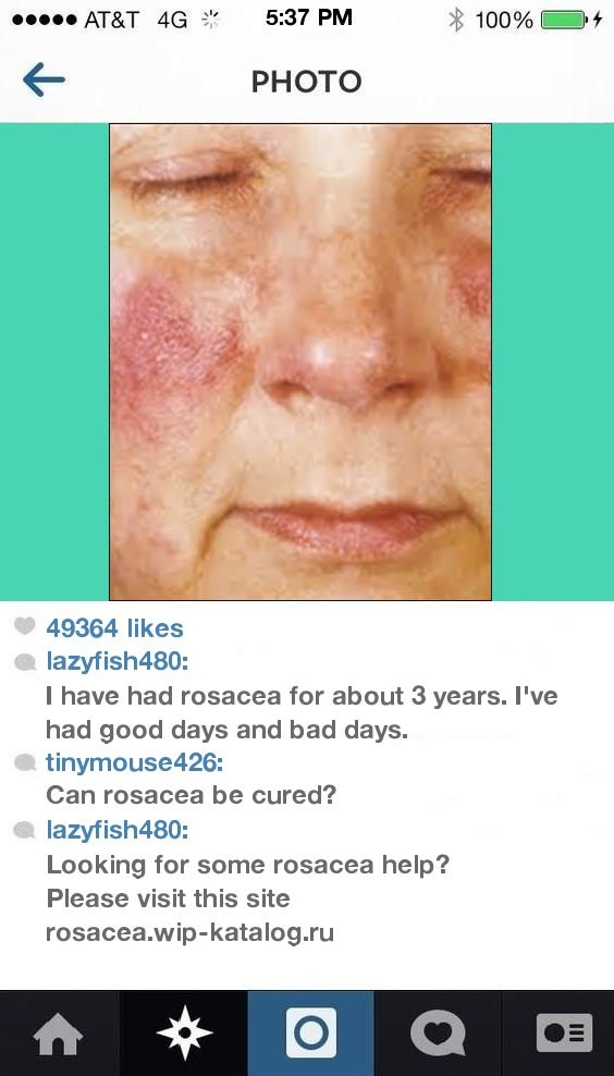 Rosacea Skin Rash On Face 095637 - Rosacea. You have nothing to lose! Visit Site Now.
