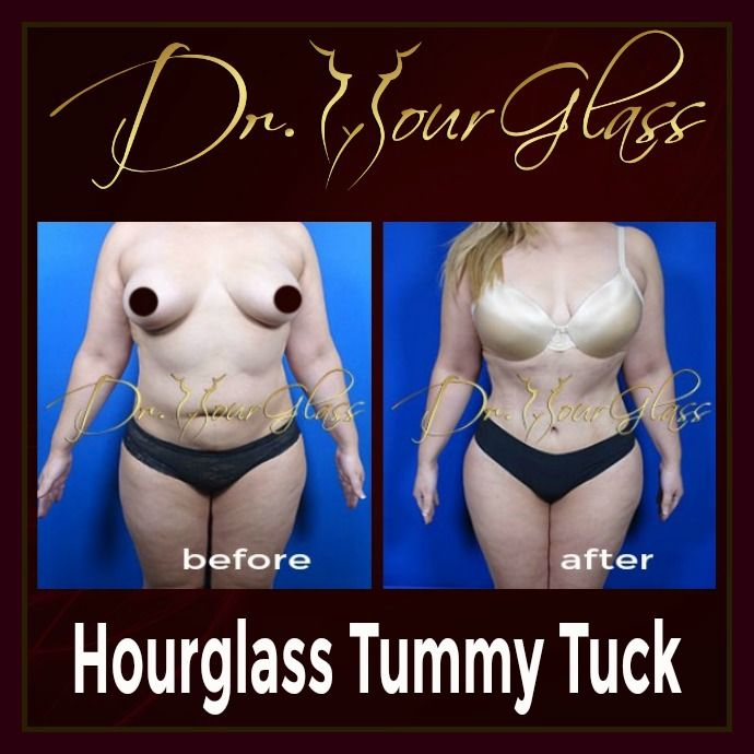 With the outstanding result of her Hourglass Tummy Tuck procedure, you cannot underestimate the effectiveness of this procedure developed by Dr. Hourglass. This will remove excess fat while sculpting your body into an hourglass shape.