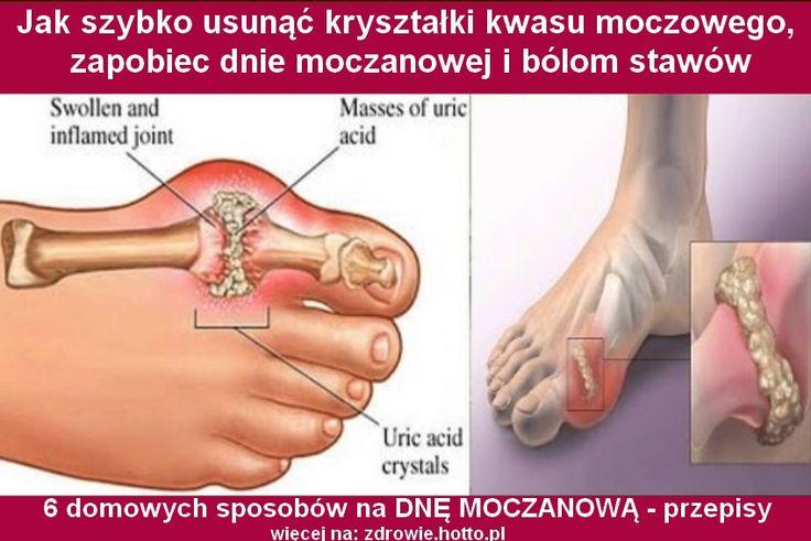 zdrowie.hotto.pl-jak-usunac-krysztalki-kwasu-moczowego-6-przepisow-dna-mocznowa-bole-stawow