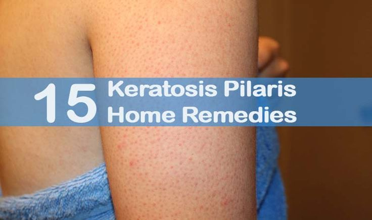 Keratosis Pilaris (KP) is a common skin disorder with rough patches and small bumps found on arms, cheeks, thighs, legs, and buttocks, giving the appearance of chicken skin. KP, although not painful, is similar to acne and bumps can become red, inflamed, dry, or chapped, also known as keratosis pilaris rubra faceii. The KP occurs …