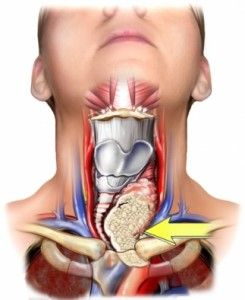 If you, or if someone you love has been diagnosed with thyroid nodules, then you probably have quite a few questions.  What are thyroid nodules? What causes these nodules to develop? What are the symptoms of thyroid nodules, and how are they diagnosed? Wha