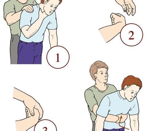 A manobra de Heimlich é uma técnica de primeiros socorros para asfixia que deve ser realizada quando a vítima estiver engasgada, a fim de retirar um...