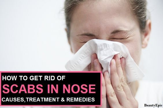 How to Get Rid of Scabs in Nose :Nasal scabs could be mucus in the nose that has dried up or could also be the sores healing up and forming scabs.