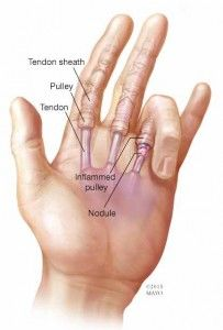 Trigger finger happens as a result of inflammation and irritation around a finger tendon.