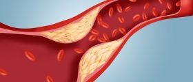 Vuoi Abbassare Il Colesterolo? Ecco Come Fare
