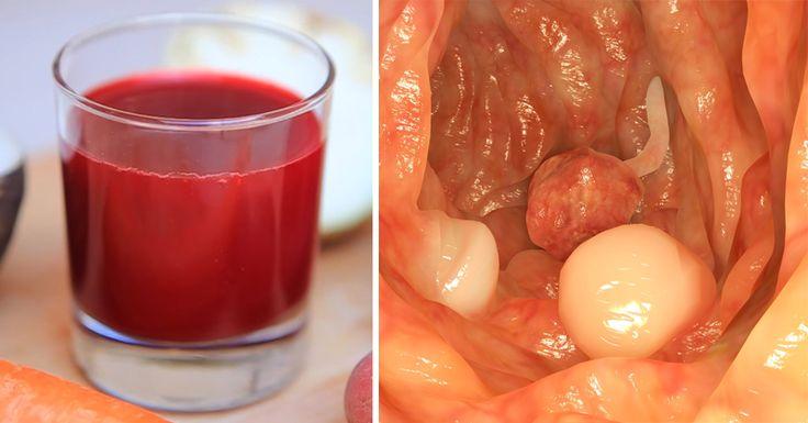Viac ako 45000 onkologických pacientov svedčí, že ich vyliečil tento džús