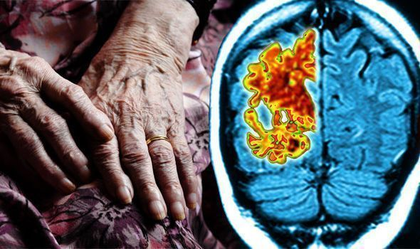 You Can See More: What is vascular dementia? Symptoms causes and risk factors of the deadly condition #Whatisdementia?