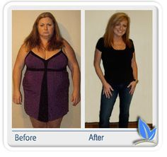 gastric sleeve before and after pics - Google Search