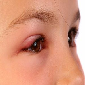 Home Remedies For Swollen Eyes - Natural Treatments & Cure For Swollen Eyes | Find Home Remedy