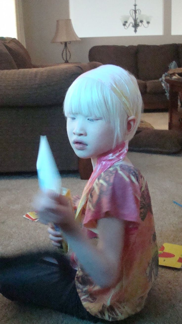 Young Asian girl with albinism