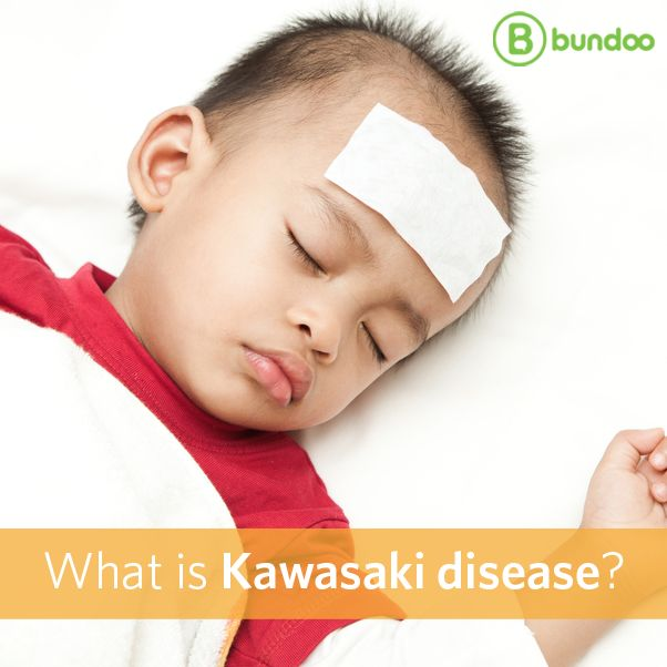 Is There A Cure For Kawasaki Disease