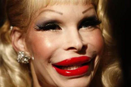 Worst Cases Of Botox Ever Girls Celebrities No No No