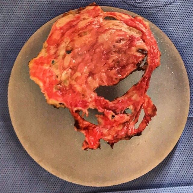 "1,355 Likes, 17 Comments - Beverly Hills Plastic Surgeon (@drjimmyfirouz) on Instagram: ""Removal of an old Silicone Implant & its Capsule. 😧 ... This patient underwent her surgery in a sub…"""