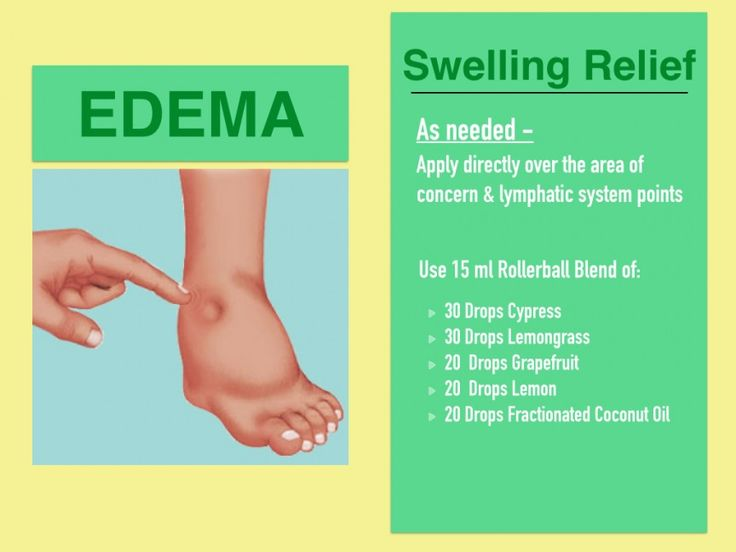 Edema-Swelling-essential-oil
