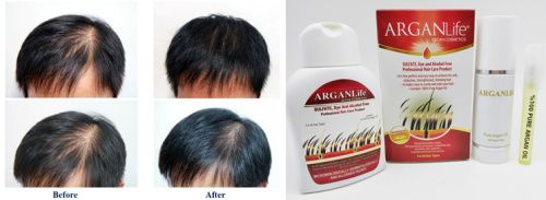 You can protect your hair and scalp from the negative effects of harsh chemicals with ArganLife! #arganlife