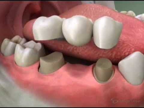 Tooth Bridge 3 Unit Bridge - Roseville Dentist