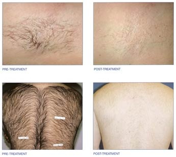 17 best images about manscaping laser hair removal for