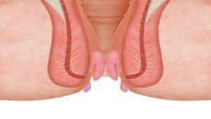 Cara Cepat Mengobati Wasir Secara Alami - Wasir sering disebut dengan Ambeien atau dalam bahasa kedokteran disebut Hemeroid, yang merupakan penyakit  http://caramengobatialami.web.id/cara-cepat-mengobati-wasir-secara-alami/