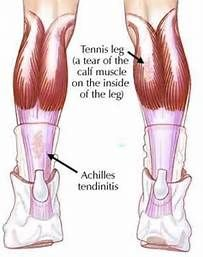 Severe Calf Muscle Strain - Bing images