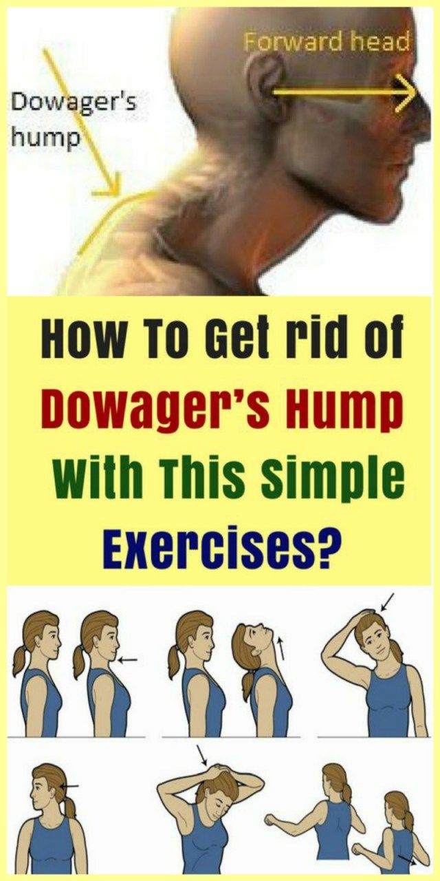 How To Get Rid Of Dowagers Hump With This Simple Exercises Easy Workouts Exercise Posture Exercises