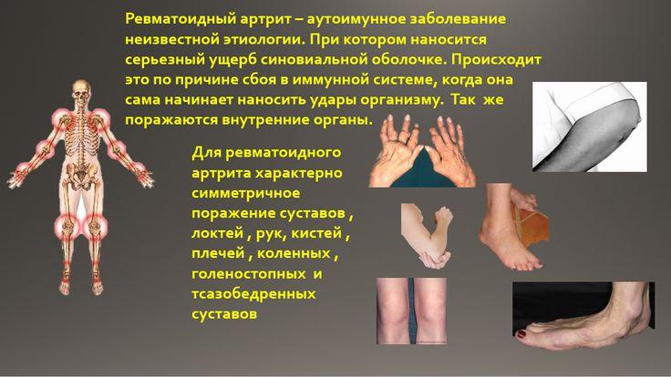 Forever Aloe Vera : Ревматоидный артрит . Или добро пожаловать в мой мир...продукцию можно купить с сайта   компании http://miraloerus.flp.com