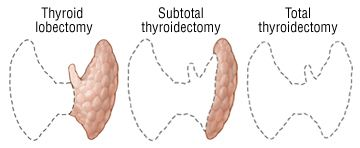 Discover how to fix your thyroid health even if you have no thyroid gland after RAI treatment or thyroidectomy...