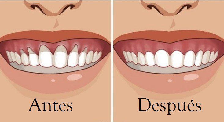 La retracción de encías, o recesión gingival, es una retracción de las encías de la corona de los dientes. Es una enfermedad progresiva que empeora gradualmente a lo largo de los años.