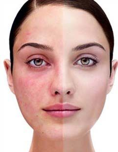 Many people have rosacea on their face and weren't aware of. Most people think it is a problem by itself that will pass.   There are several types of rosacea , but for all common facial is  redness which can be very uncomfortable. It is a chronic inflammatory skin disease characterized by bumps and…