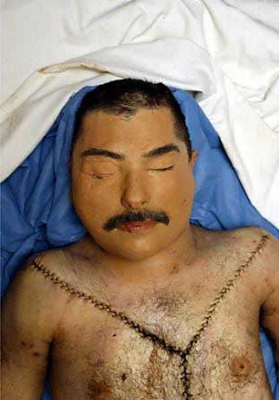 A body said by U.S. Central Command to be the corpse of former Iraqi dictator Saddam Hussein's son, Qusay, lies in the U.S. Air Force morgue at the Baghdad airport, July 25, 2003. U.S. forces in Iraq partly rebuilt the severely damaged faces of two bodies shown to journalists in an effort to try to convince Iraqis that the battle-scarred corpses were those of Hussein's widely feared sons. Photo by Pool via Reuters -