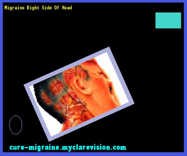 Migraine Right Side Of Head 184826 - Cure Migraine