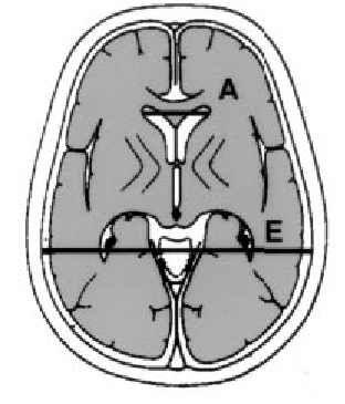 Hidrocefalia a presión normal