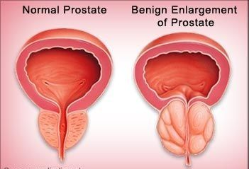 Benign Prostatic Hyperplasia Bph Check more at http://www.healthyandsmooth.com/prostate-health/benign-prostatic-hyperplasia-bph/