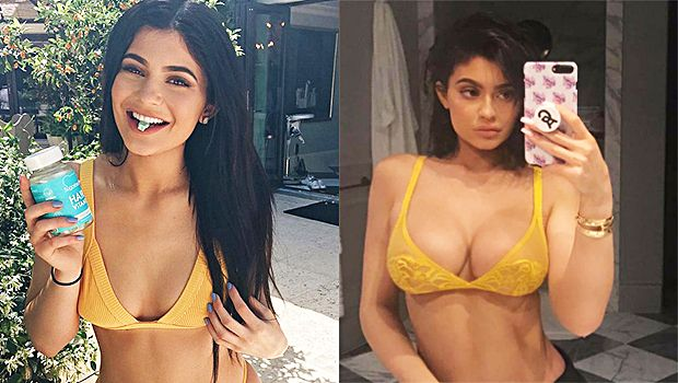 Did Kylie Jenner Just Prove She Had Breast Implants? See Before & After Shots That Have Fans Shook https://tmbw.news/did-kylie-jenner-just-prove-she-had-breast-implants-see-before-after-shots-that-have-fans-shook Kylie Jenner posted a super racy photo of herself in a yellow bra on Snapchat late July 23, and fans are flipping out over how huge her breasts look. Does this prove Kylie got implants?Rumors have swirled for a while now that Kylie Jenner, 19, got breast implants at some point, but…