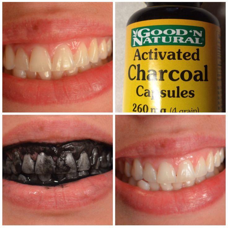 17 bedste id 233 er til avoir des dents blanches p 229 blanchir les dents naturellement