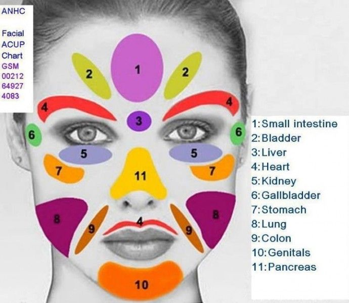 Reasons For Acne (Face Mapping)