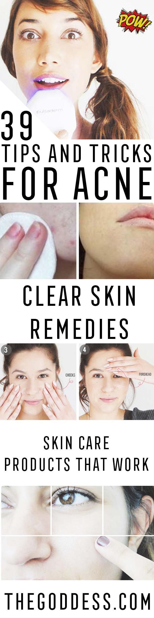Acne Tips and Tricks - Acne Hacks That Work With Tips And Tricks On How To Cover Up Acne Bumps And How To Cover Up Acne Scars With Makeup and Without Make Up. Life Hacks And Pimple Hacks For Overnight Treatment With Ideas From Pinterest, Instagram, Buzzfeed, and Other Great Skin Care Resources. Get Rid Of And Cover Up Pimples And Acne For Smooth And Clear Skin. Also Some Ideas And Tutorials For Preventing Acne And Using Products To Help Remove Acne Scars And Damage…