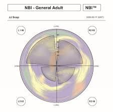 Image result for nbi whole brain thinking