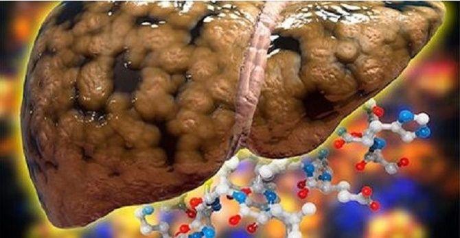 Muita gente não se preocupa com a saúde dele, mas o fígado é muito importante na eliminação das toxinas no corpo.