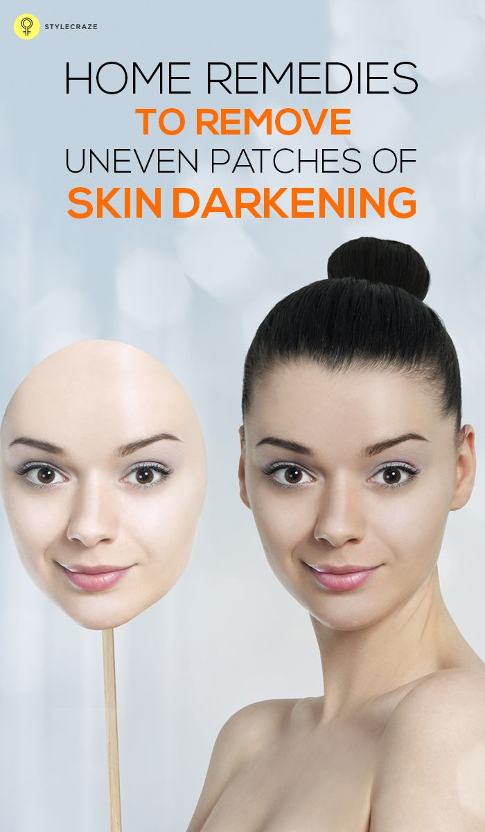 We all want a flawless skin and face, but various factors lead to darkening on the face and skin. Now get rid of dark patches on skin by following these effective remedies