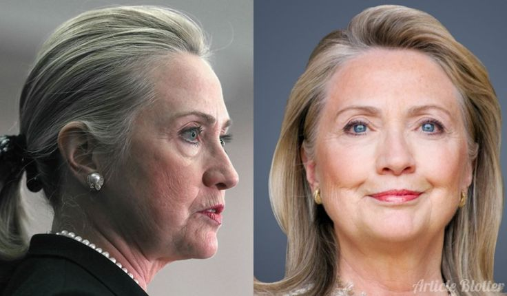 Hillary Clinton Plastic Surgery Before After Pictures