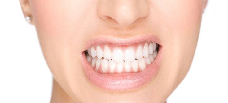 Bruxismo: o stress descontado nos dentes